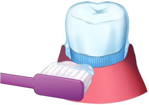歯のコーティングのイラスト