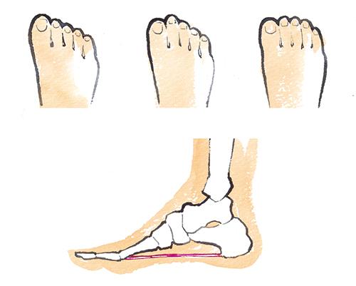 つまさきと足の骨が見える断面図