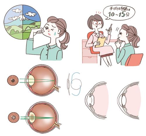 女性 眼球